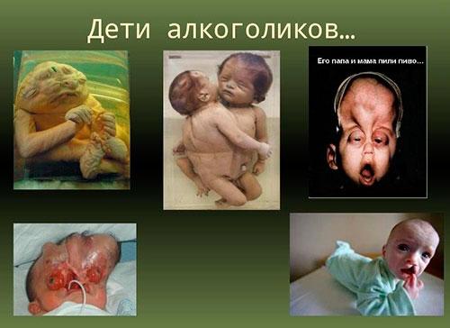 Алкоголь при беременности на ранних и поздних сроках может убить ...